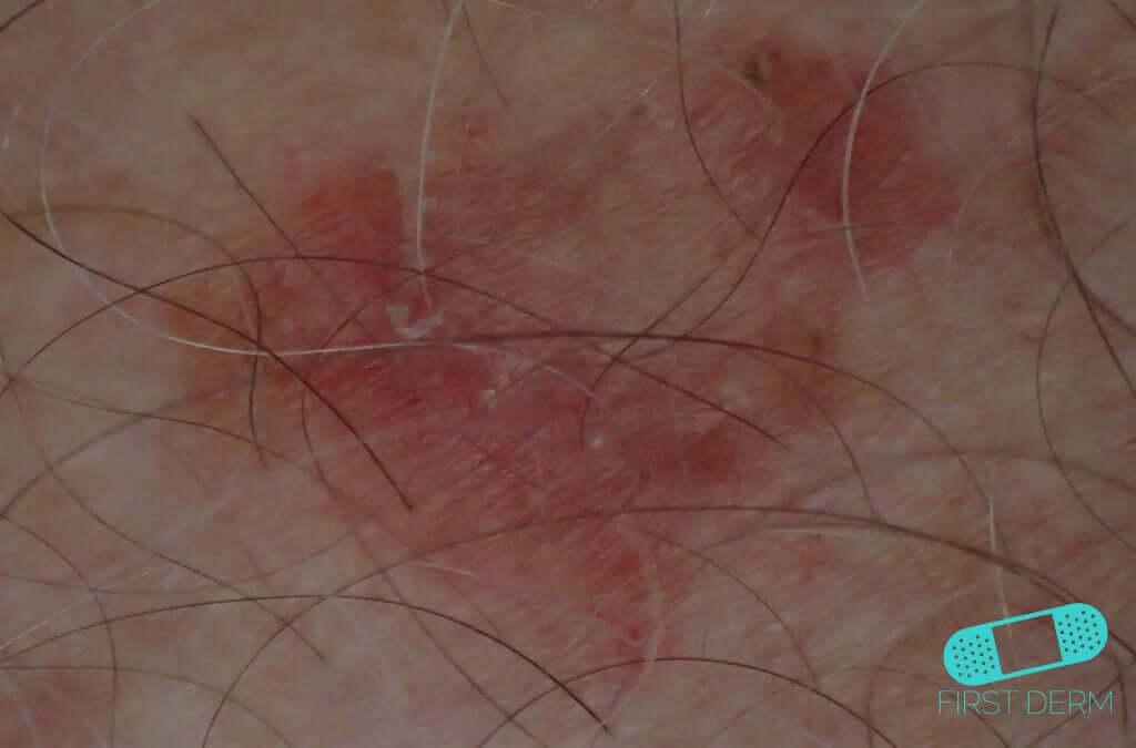 Sun-Damaged Skin (03) skin [ICD-10 L56.8]