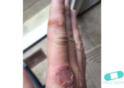 Svinkoppor (impetigo) (19) finger [CD-10 L01.00]