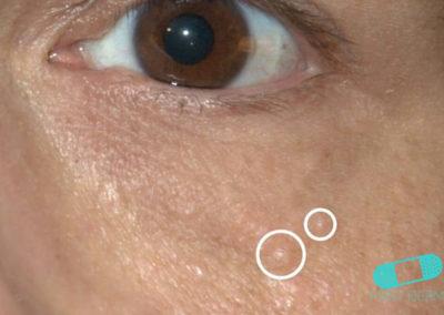 Syringom (01) ögonlock kind [ICD-10 G95.0]