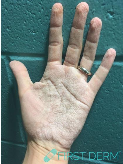 Travel rash Aquagenic wrinkling of the palms left hand