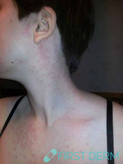 Travel rash Mallorca-acne on face