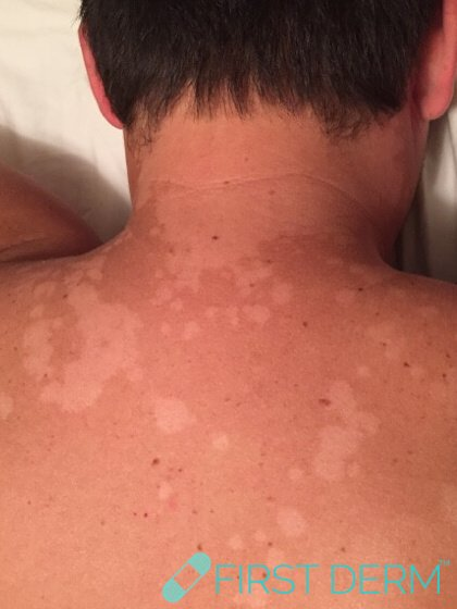 Travel rash pityriasis versicolor on back sun
