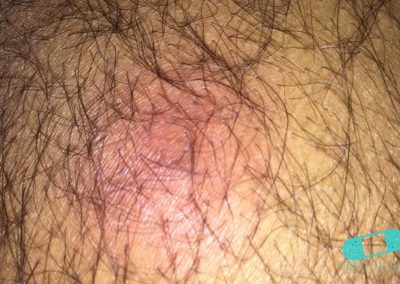Varbölder (06) hår [ICD-10 L02.91]