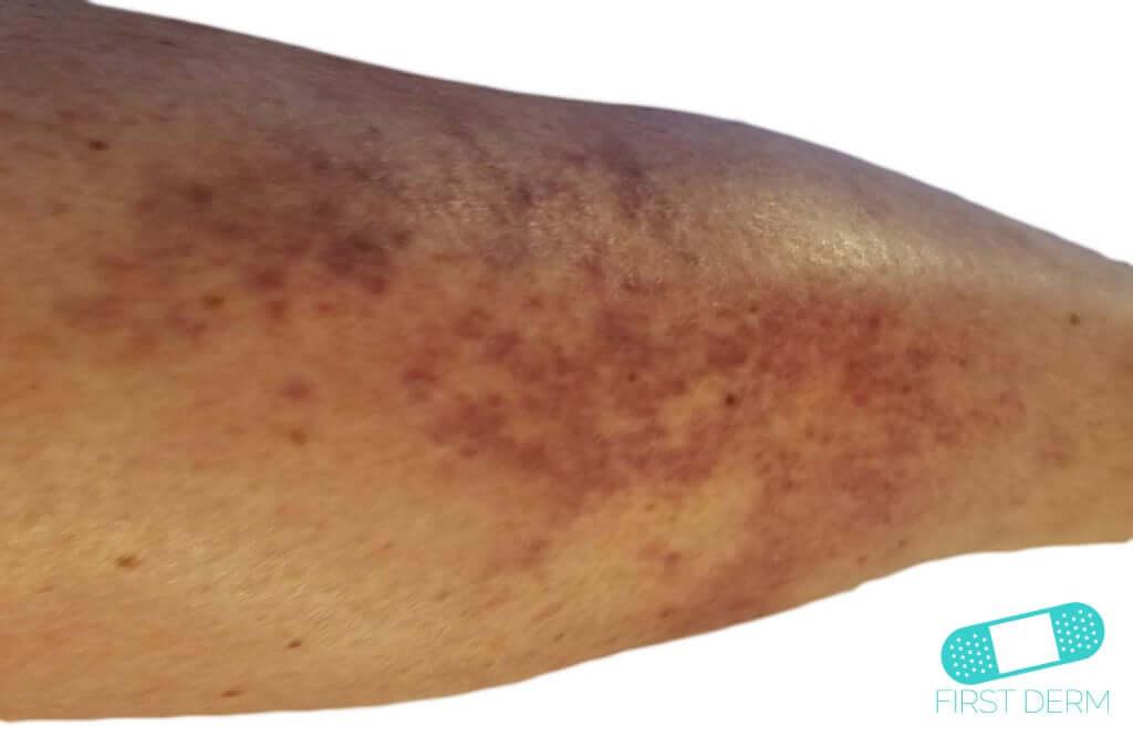Vasculitis (Leukocytoclastic Vasculitis) (01) leg [ICD-10 L95.9]