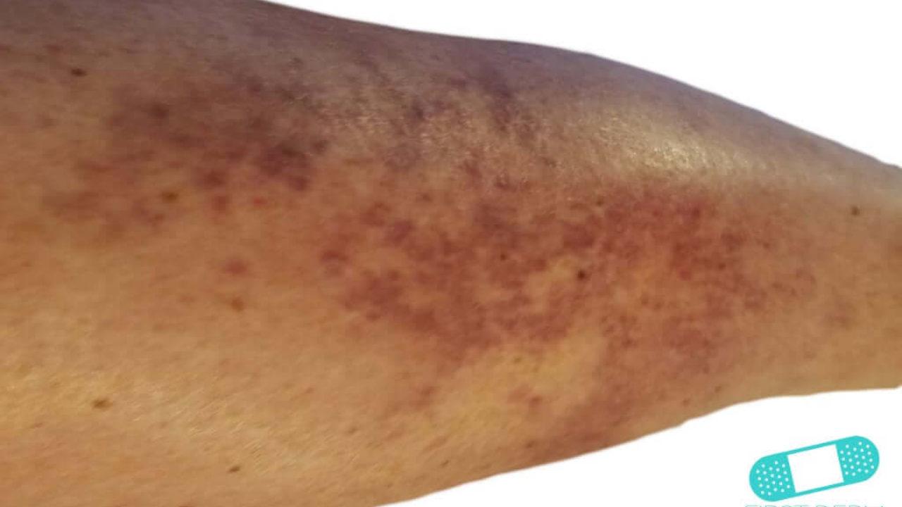 vasculitis erupcion cutanea
