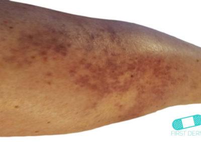 Vasculitis (Vasculitis Leucitoclástica) (01) pierna [ICD-10 L95.9]