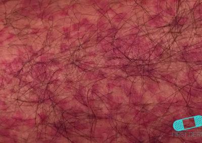 Vaskulit (kärlinflammation) vad (04) hud [ICD-10 L95.9]