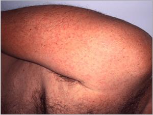 Virus Zika (Sarpullido) (03) brazo [ICD-10 A92.5]