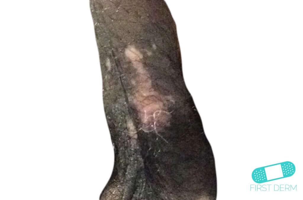 Vitiligo (01) penis [ICD-10 L80]