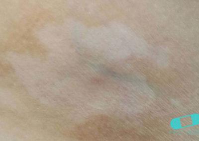 Vitiligo (02) mage [ICD-10 L80]