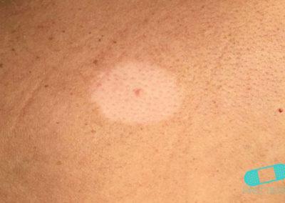 Vitiligo (03) skin [ICD-10 L80]