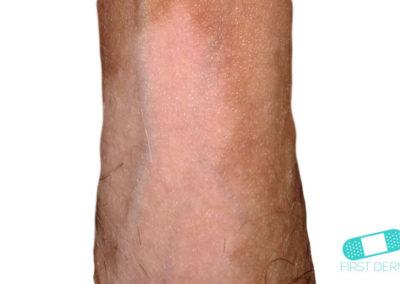 Vitiligo (09) penis [ICD-10 L80]