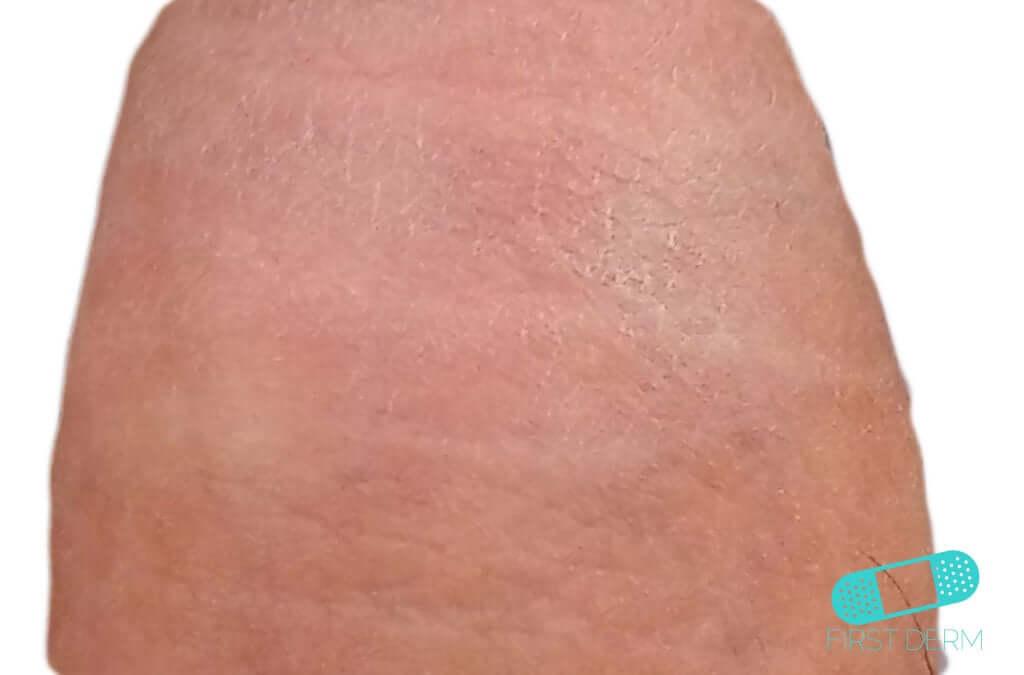 Vitiligo (15) leg [ICD-10 L80]
