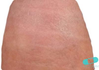 Vitiligo (15) pierna [ICD-10 L80]