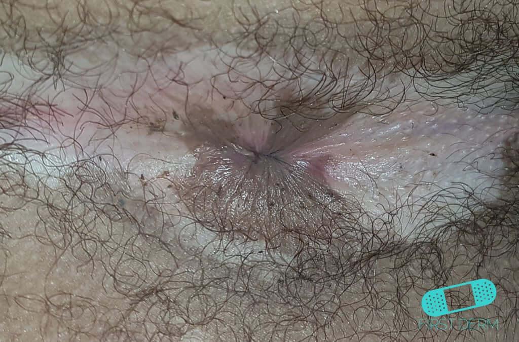Vitiligo (16) anus [ICD-10 L80]