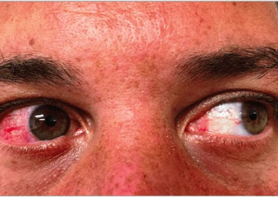 Zika Virus (Rash) (01) eyes [ICD-10 A92.5]