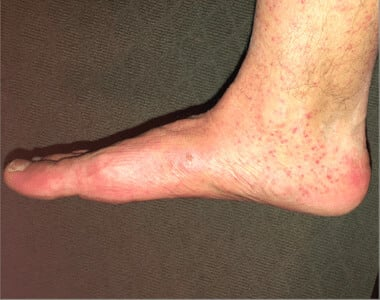 Zika Virus (Rash) (02) foot [ICD-10 A92.5]