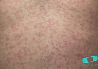 Zika Virus (Rash) (05) back [ICD-10 A92.5]