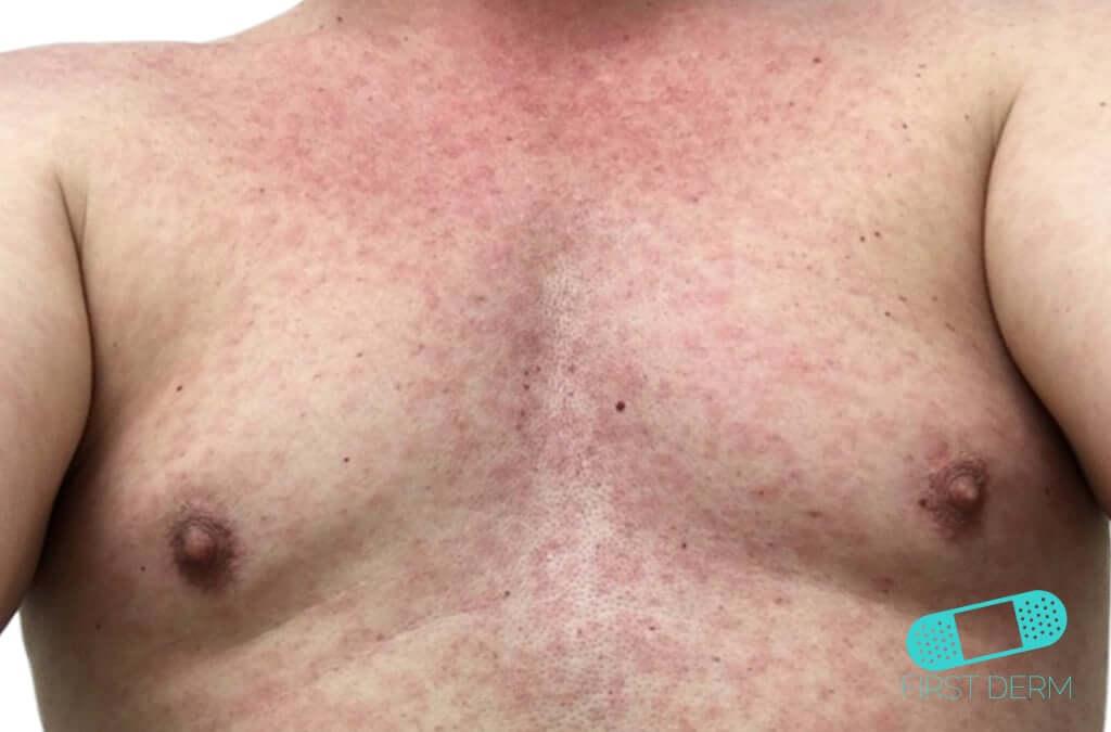 Zika Virus (Rash) (06) chest [ICD-10 A92.5]