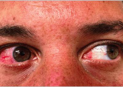 Zikavirus (utslag) (01) ögon [ICD-10 A92.5]