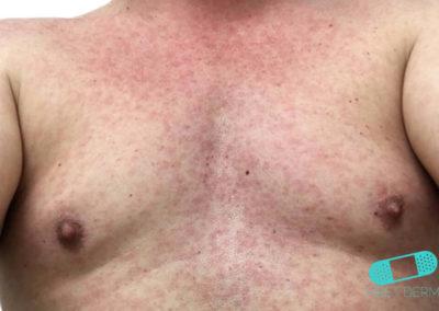 Zikavirus (utslag) (06) bröst [ICD-10 A92.5]