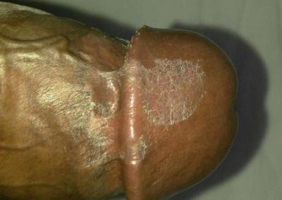 Balanitis Circinata - penis (2)
