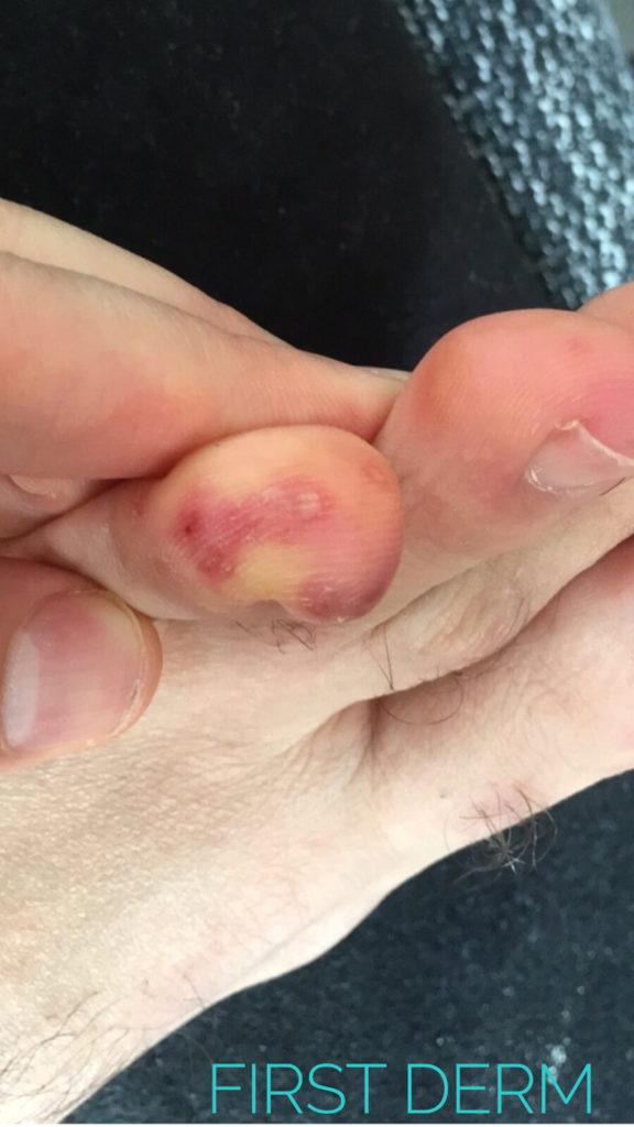 chilblains skin lesions toe male 30 COVID-19 coronavirus