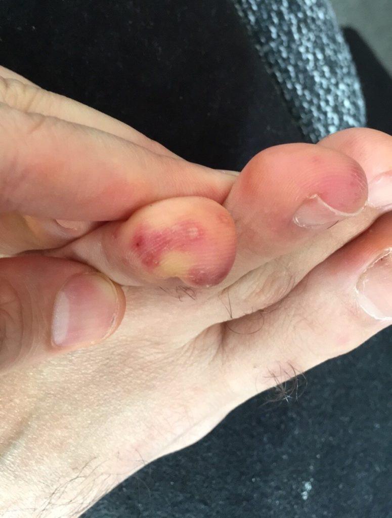 chilblains skin lesions toe male 30 COVID19 coronavirus 1