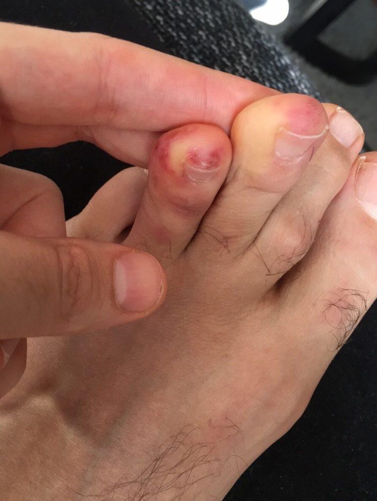chilblains skin lesions toe male 30 COVID19 coronavirus 2