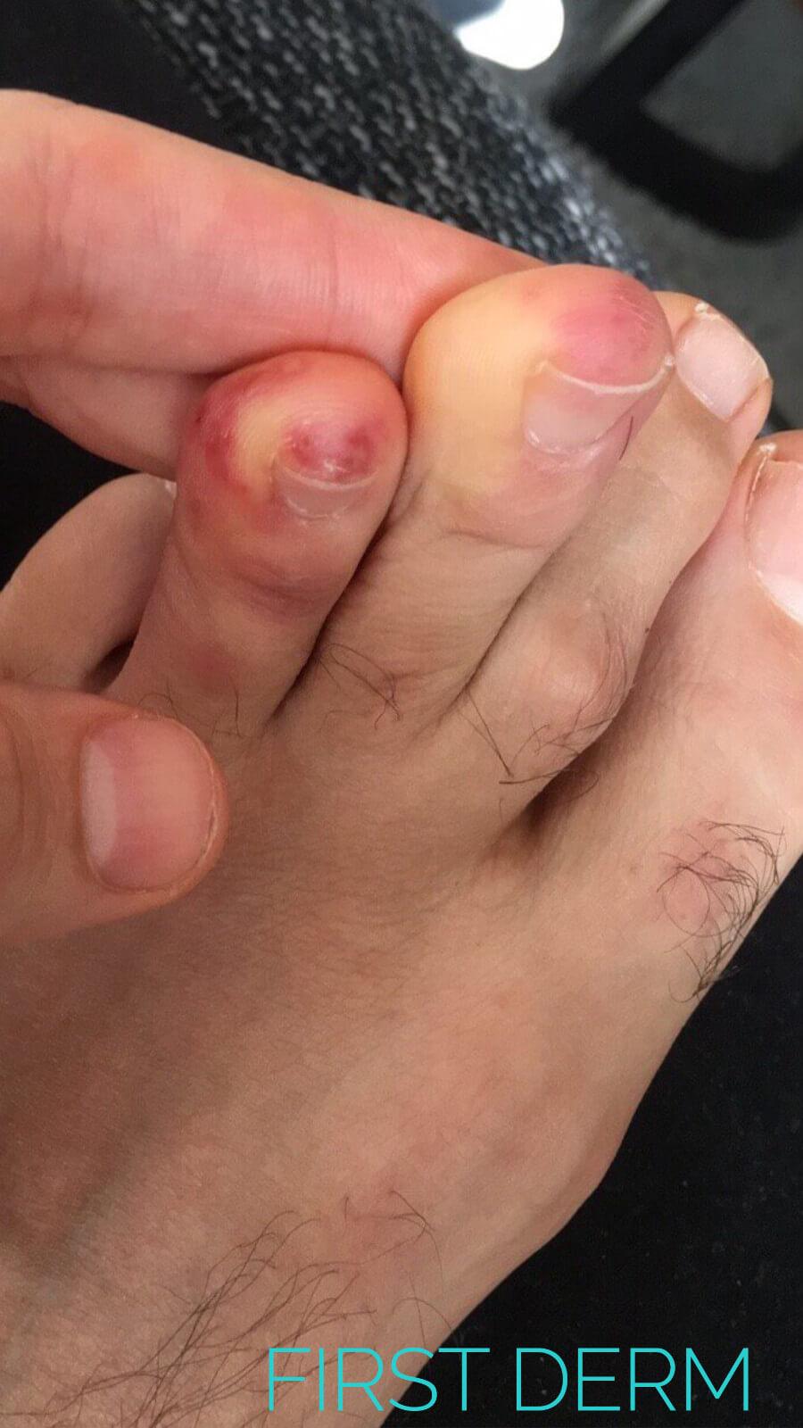 Coronavirus (Covid-19) Skin: Covid Toes