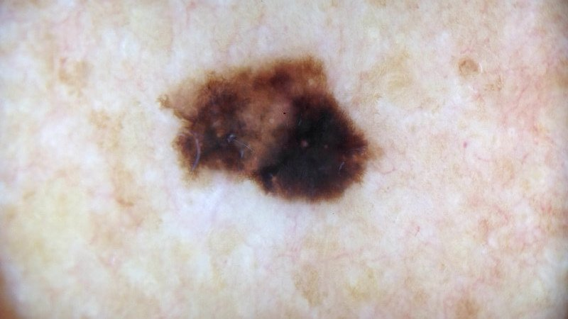 melanoma pictures back dermoscopy skin cancer ICD 10 C43.9