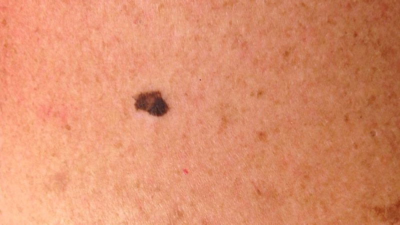 melanoma pictures back high quality skin cancer ICD 10 C43.9