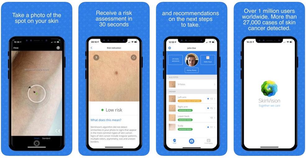 sex hudcancer mobil SkinVision AI